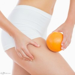 Exercise_and_Cellulite