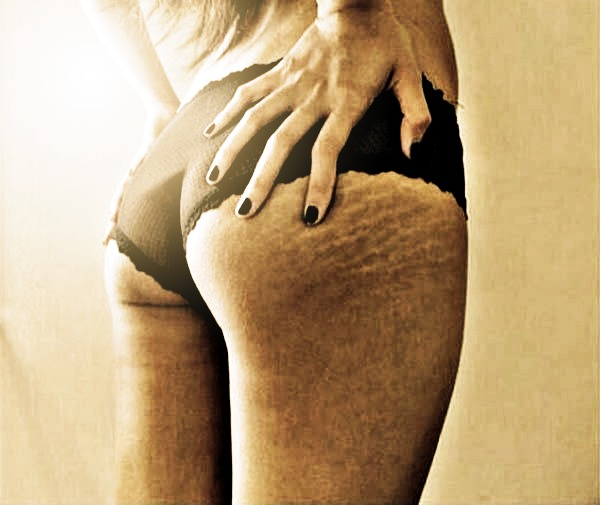 How to Get Rid of Stretch Marks   Confessions of a Cosmetologist